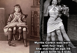 human skeleton barnum - Myrtle Corbin was born with four legs. She married at age 19 and gave birth to 5 kids.