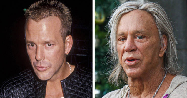 mickey rourke then vs now