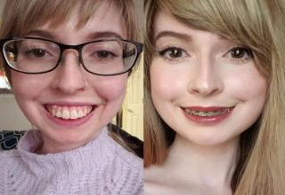 a woman before and after upper jaw surgery