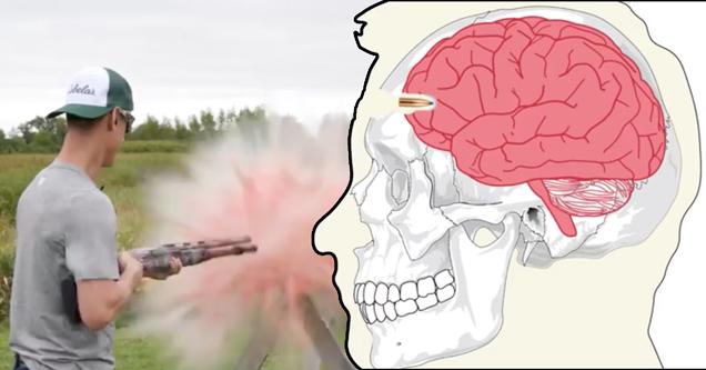 Что происходит, когда человеку выстреливают в голову