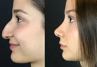 a girl before and after a nose job