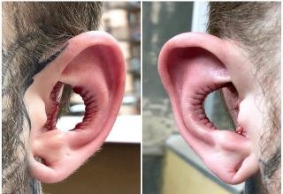 An Australian man recently flew halfway across the world for a bizarre body modification.  For whatever reason, he decided that having the insides of his outer ears removed. After he shared a photo of it on facebook, other people began roasting him with comments and memes.