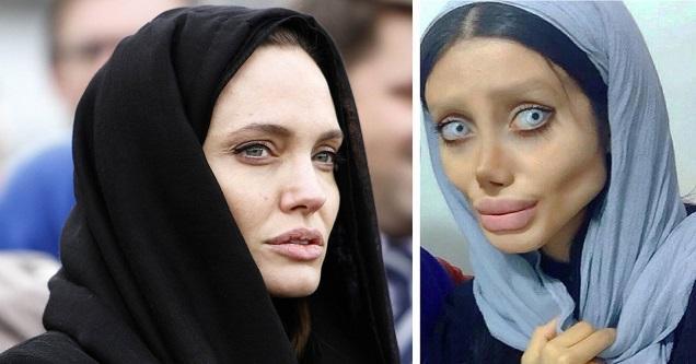 Iranian Woman Undergoes 50 Operation To Look Like Angelina -6736