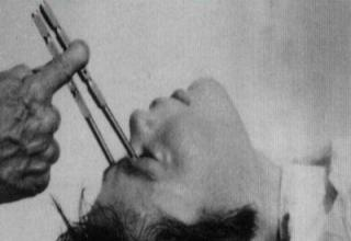 Crazy procedures from the past that Doctors actually used to perform.