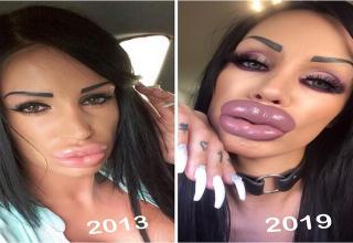 list about plastic surgery that was taken for  | 2013 2019