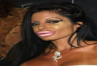 When getting plastic surgery goes wrong.